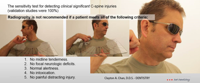 C spine Injury - Clayton A. Chan, DDS