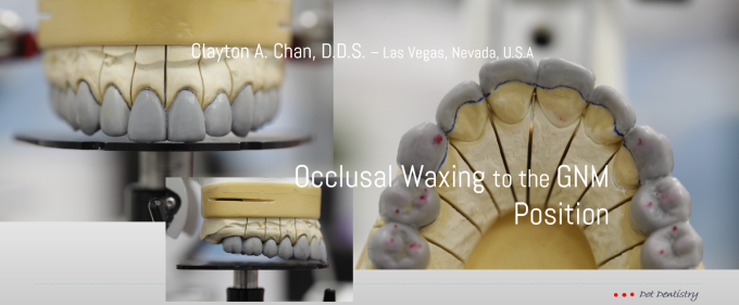 occlusal-wax-up-clayton-a-chan-d-d-s-5