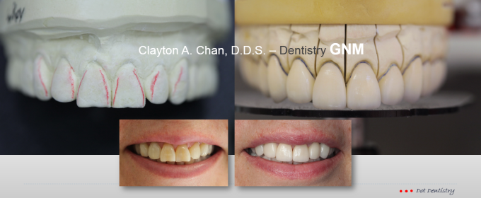 occlusal-wax-up-clayton-a-chan-d-d-s-9