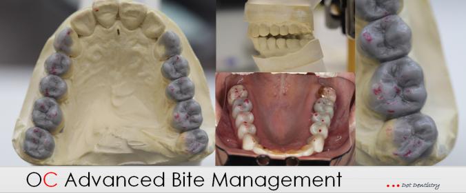 OC Advanced Bite Management Transfer