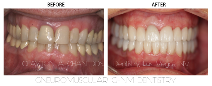 Before After GNM Dentistry - Clayton A. Chan, DDS