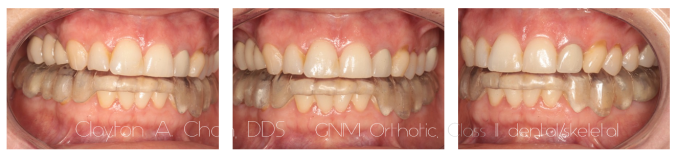 Class II GNM Orthotic 2 - Clayton A. Chan, DDS