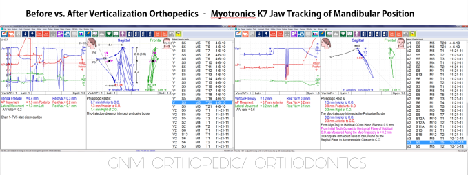 K7 Orthopedic Orthodontic PJ - GNM Orthodontics Before vs After Treatment - Clayton A. Chan, DDS