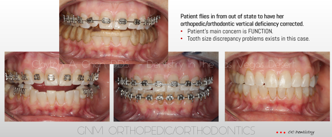 Vertical Orthopedic Orthodontic PJ - GNM Orthodontics - Clayton A. Chan, DDS